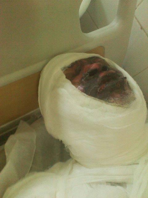 Mamadou Korka, dans son lit d'hôpital